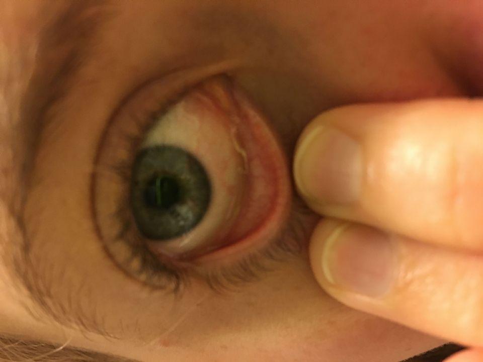 Eye Parasite 26 On Curezone Image Gallery