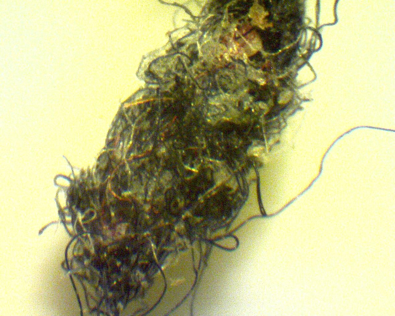 https://www.curezone.org/upload/Parasites/Large_Blackhead.jpg