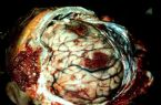 Animal Brain infected with worms/parasites
