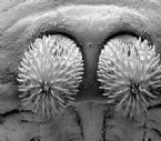 Head_tapeworm.jpg