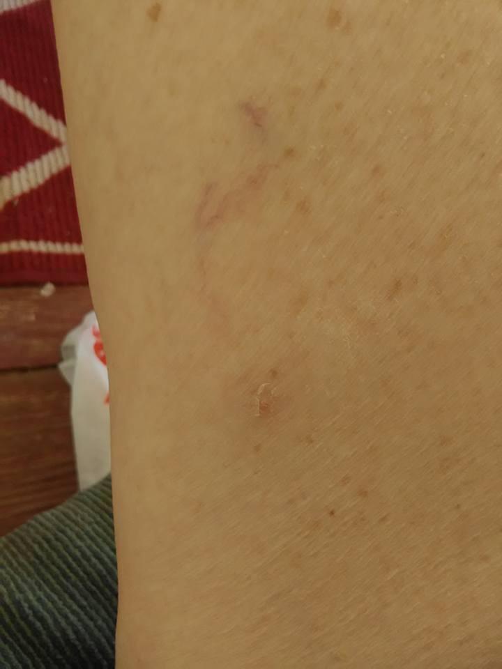 http://curezone.com/upload/Parasites/basil_before_on_leg.jpg