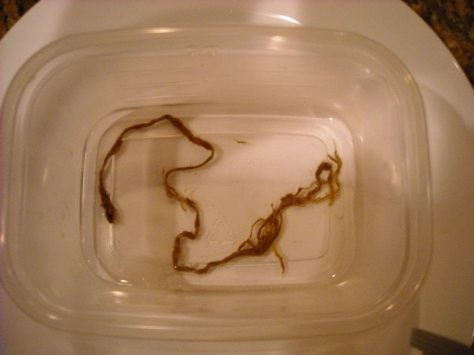 tapeworm? Please help identify ... (Click to enlarge)