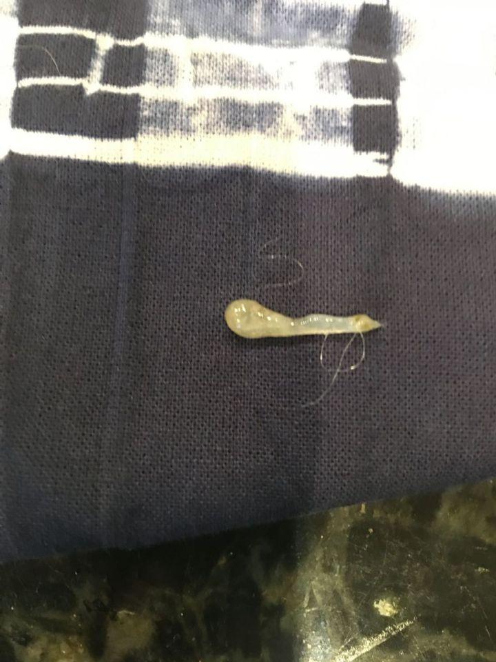 http://curezone.com/upload/Parasites/mucous.jpg