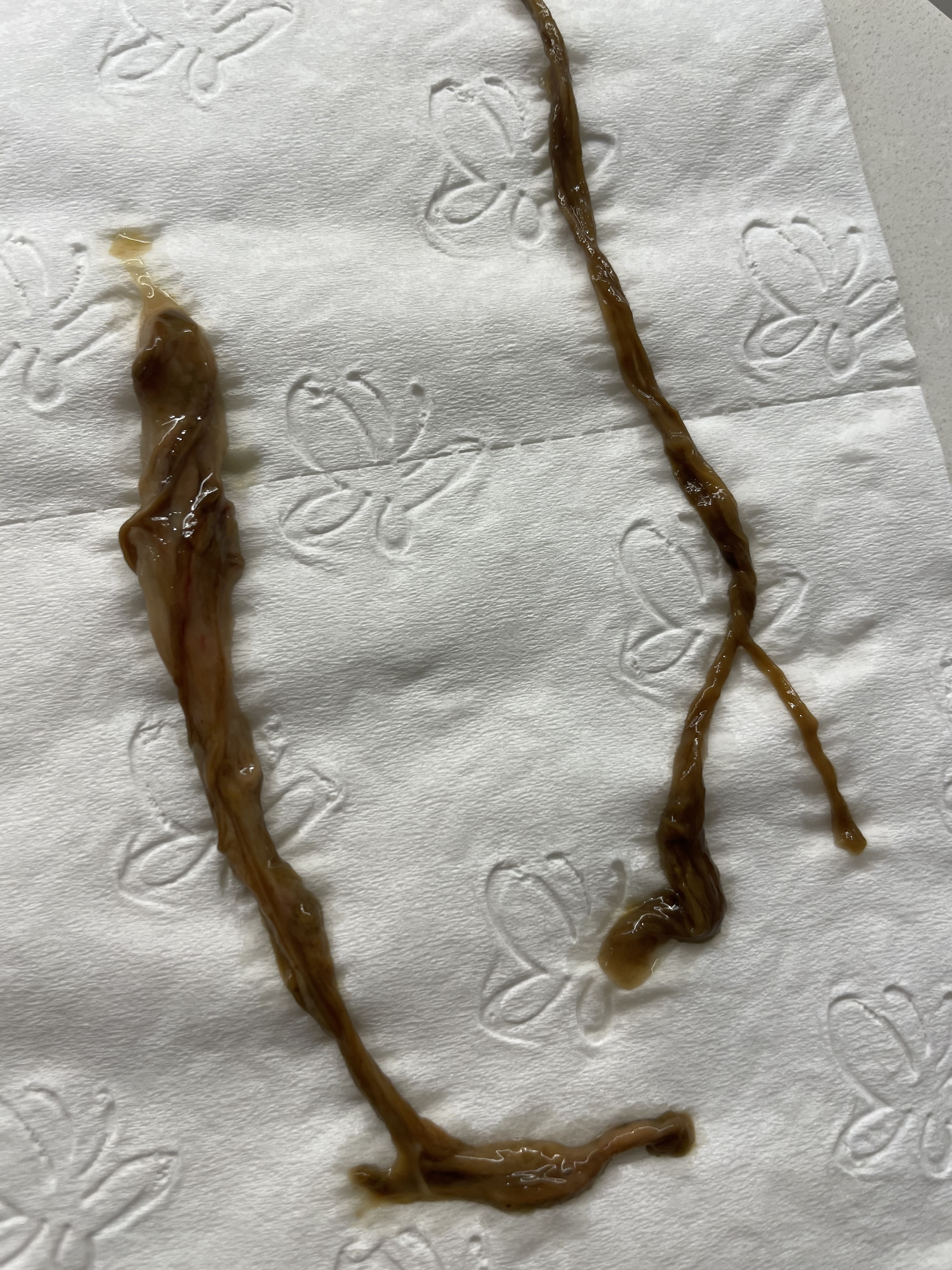https://www.curezone.org/upload/Parasites/parasite25.jpg