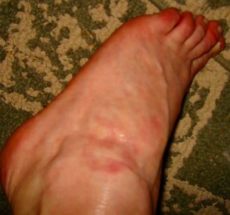 http://curezone.com/upload/Parasites/s_Muse_Worm_Par/other_foot_rash_same_person.jpg