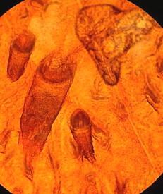http://curezone.com/upload/Parasites/s_Muse_Worm_Par/skin_rash_sample_foot.jpg