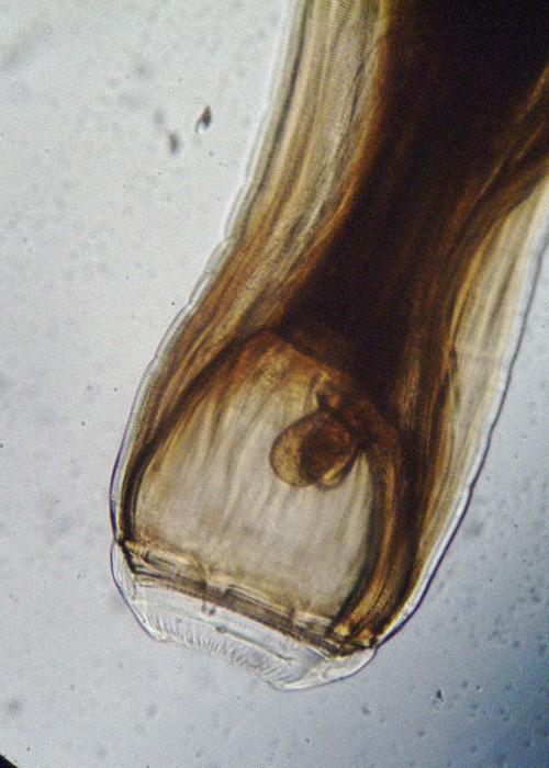 https://www.curezone.org/upload/Parasites/strongylus_vulgaris.jpg