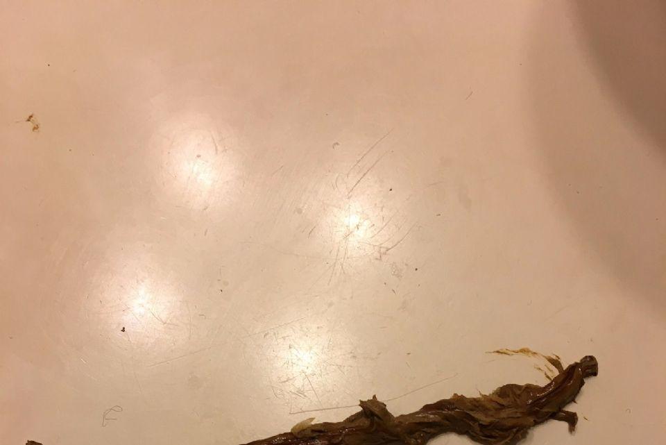 http://curezone.com/upload/Parasites/worm_3.png