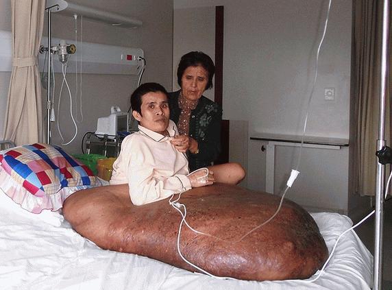 198 lb Leg Tumor