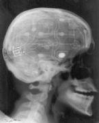 medical anomalies photoshop