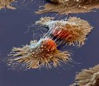 Cancer cell under microscope