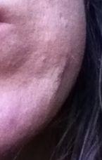 cyst/scar