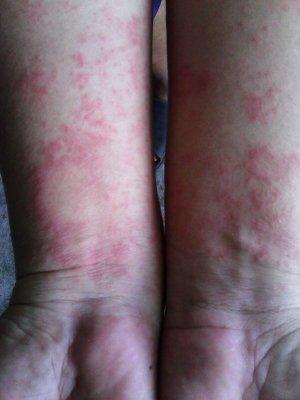 arm rashes