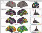Alzheimers Chart