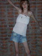 anorexia photo 008