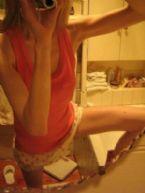 anorexia photo 013