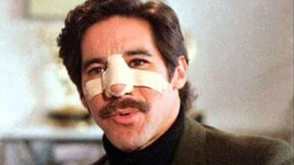 http://curezone.com/upload/_A_Forums/Ask/kotm_geraldo_nose_full.jpg