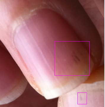 TIA symptoms with black lines in nails and eye discolouration at Ask ...
