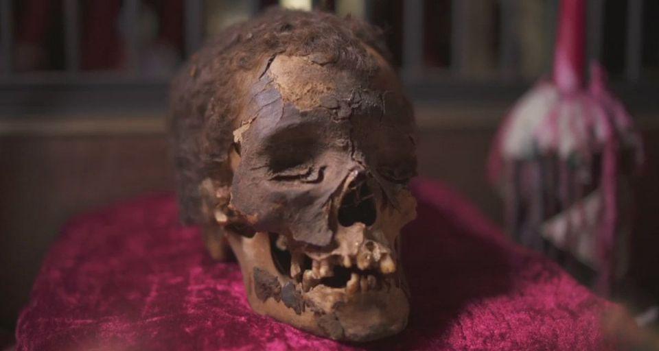 https://www.curezone.org/upload/_A_Forums/Ask/viktor_wynd_museum_mummy_head_lg.jpg