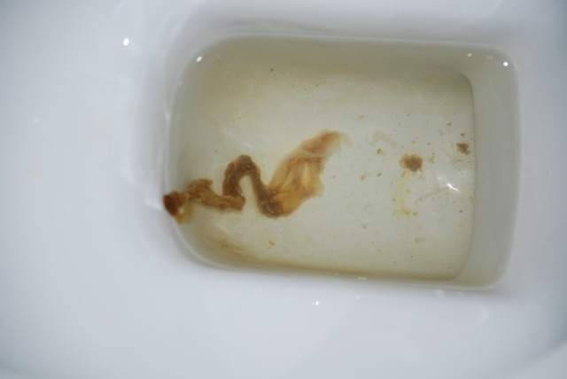 Parasite Worm In Stool