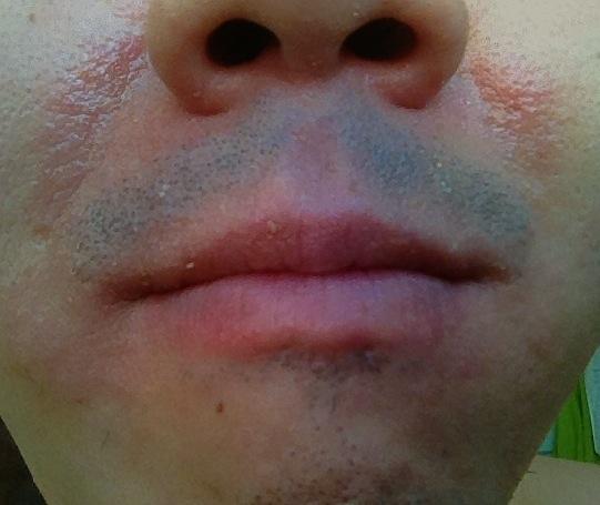 herpes simplex virus type 1 treatment heat rash