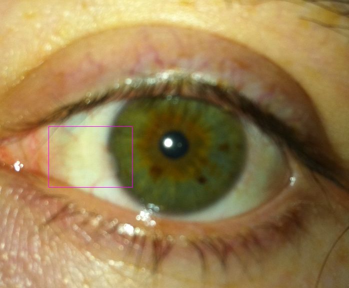 http://curezone.com/upload/_A_Forums/Ask_CureZone/photoeyeproblem.jpg