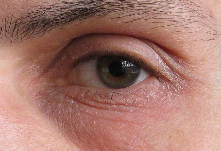Молочница глаз лечение