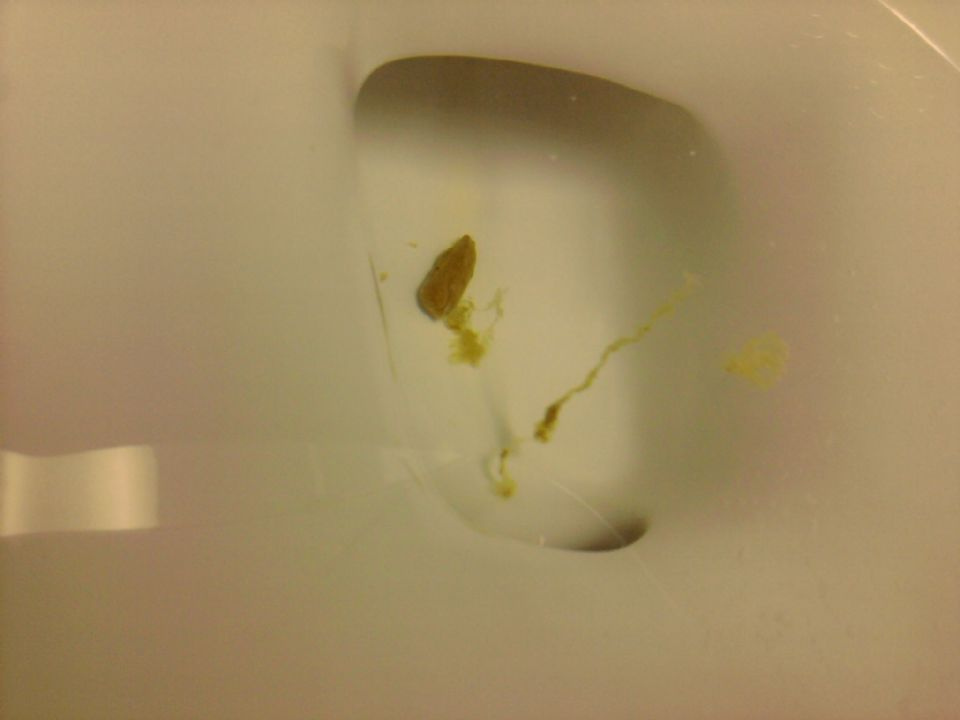 how to get rid of yelow marks in toilet