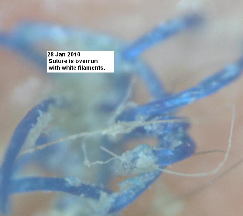 http://curezone.com/upload/_C_Forums/Candida/a_suture_at_13_days_28Jan10.jpg