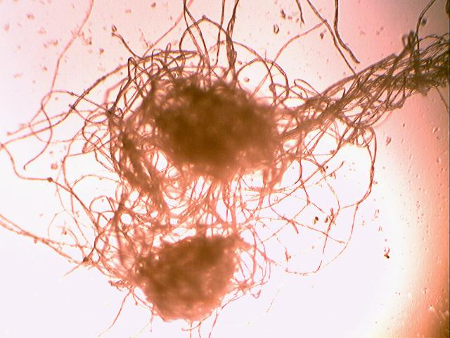 //www.curezone.org/upload/_C_Forums/Candida/tangled_filaments_in_rt_heel_blister_40x_5mm_22aug09.jpg