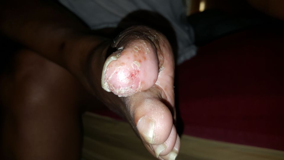 https://www.curezone.org/upload/_E_F_Forums/Eczema/20160910_085556.jpg