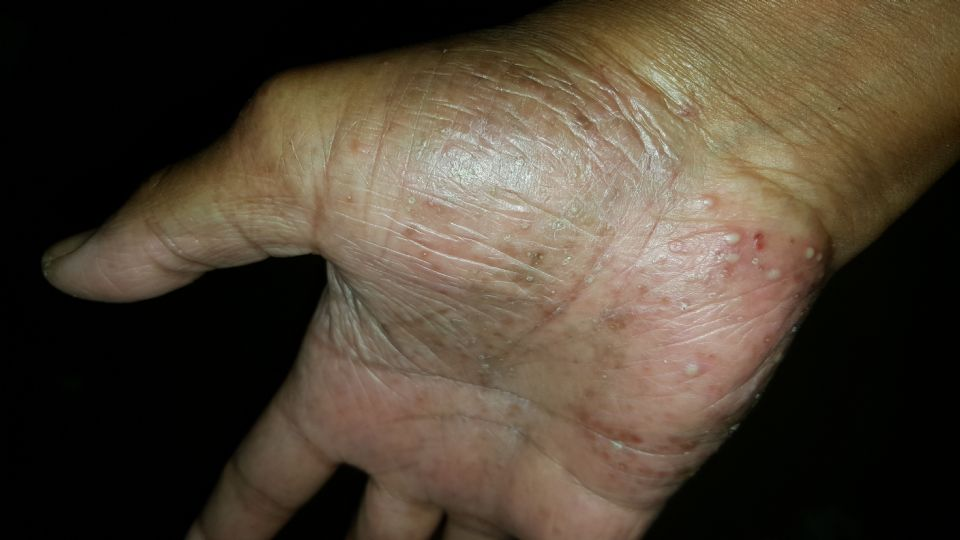 https://www.curezone.org/upload/_E_F_Forums/Eczema/20160910_092911.jpg