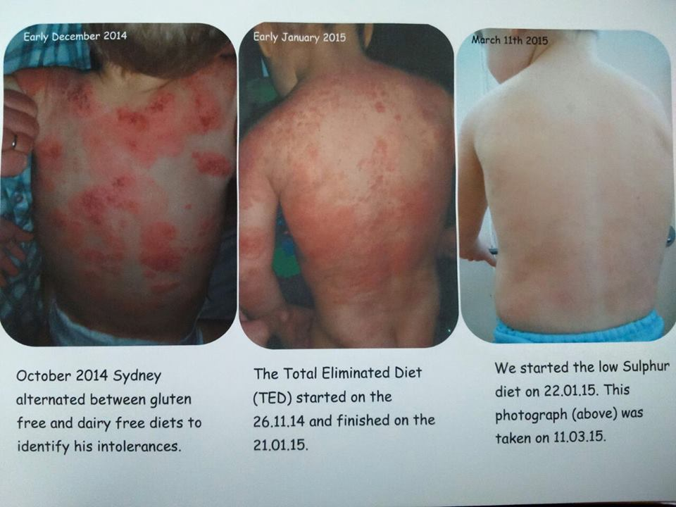 //www.curezone.org/upload/_E_F_Forums/Eczema/Eczema_cured_with_elimination_diet.jpg