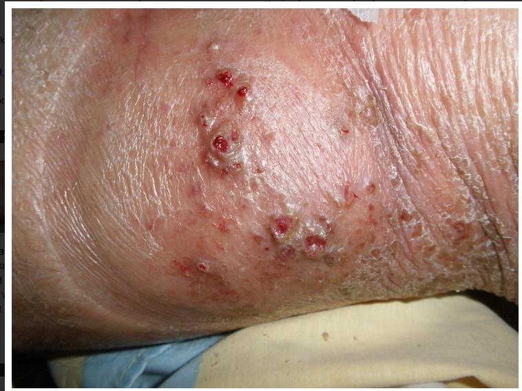 La psoriasis sobre los chupetes a gv