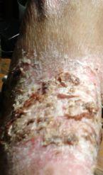 eczema crusting