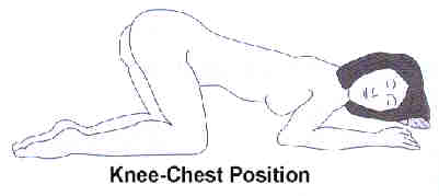 Knee-Chest enema position ... (Click to enlarge)