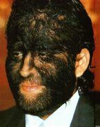 hairy face collar