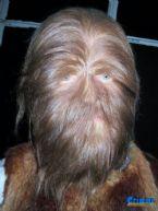 hairy face danish
