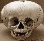 giant skulls 3