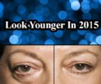 """Are You Embarrassed By Dark Circles,Under-Eye Bags & Wrinkles? """" InstantlyAgeless.UK """""""