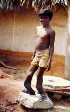 skeletal fluorosis caused by fluoride in water supply