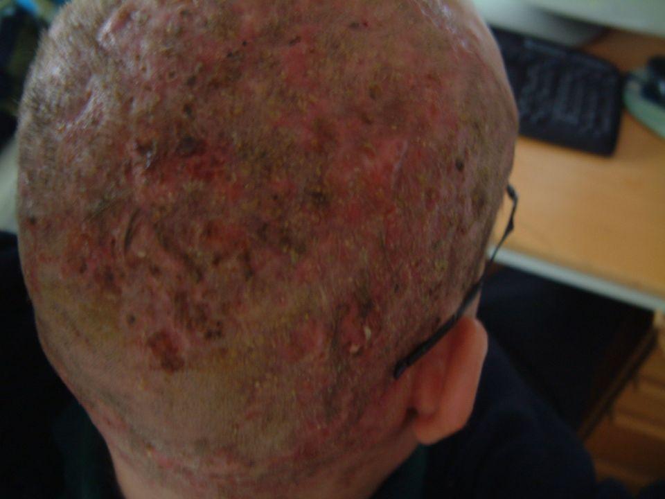 Lo schiarimento di pacchi di faccia di argilla