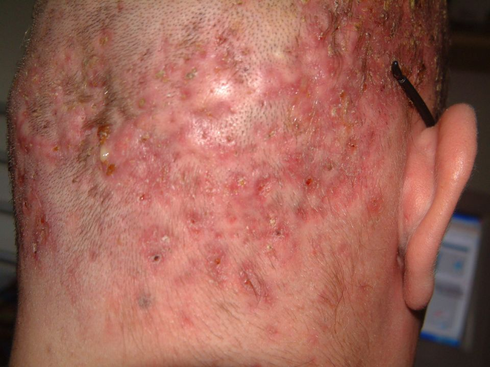 New Pictures Today My Condition At Folliculitis Forum
