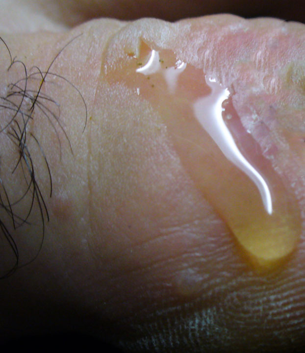What Are the Common Causes of Pus on the Scalp? (with ...