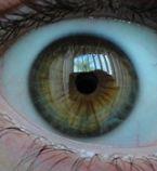 brown eye turning blue