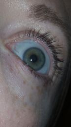 picture of my eye