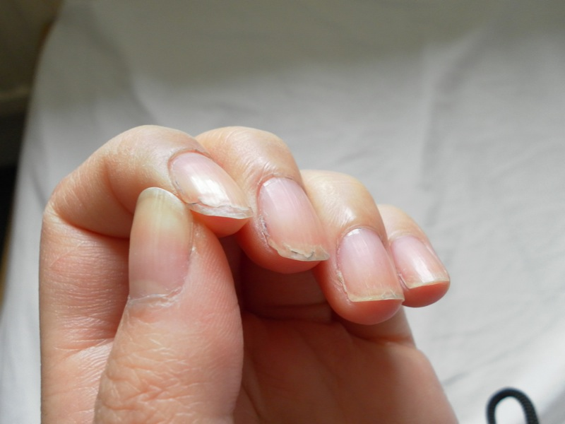 OT - Soft nails at Iodine Supplementation Support by VWT Team, with ...