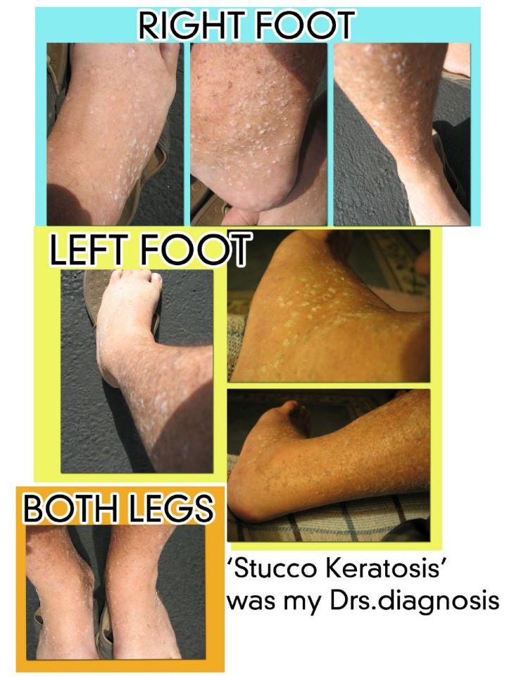 https://www.curezone.org/upload/_K_L_Forums/Keratosis_Pilaris/Stucco_feet_collage_8_5x11.jpg
