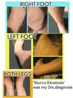 Stucco Keratosis Collage