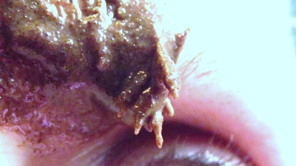 http://curezone.com/upload/_K_L_Forums/Lyme/006.jpg